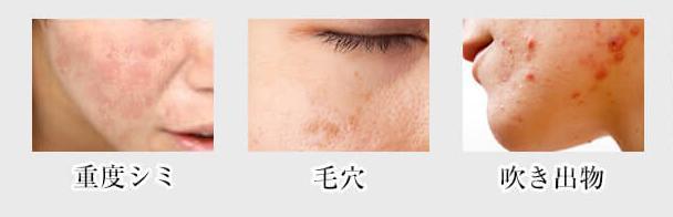 肌荒れ症状(美GENEの効果を検証・比較画像)