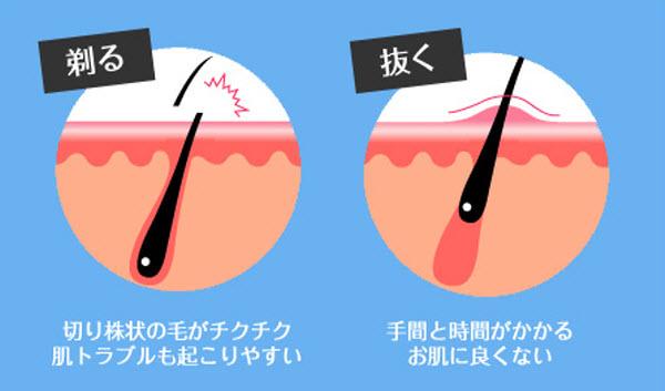 ラブリーレッグエピWケア 効果 口コミ 使い方 除毛
