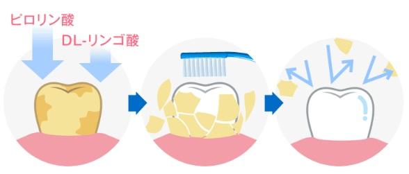 ホワイトニング効果【ピロリン酸・DL-リンゴ酸】