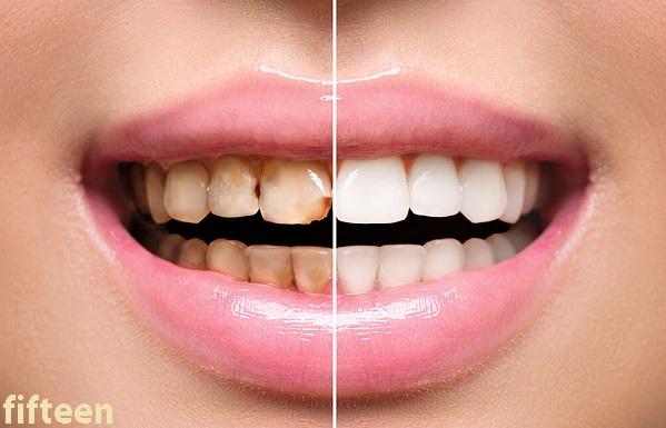 ホワイトニング歯磨きまとめ