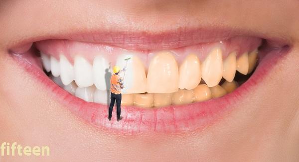ちゅらトゥースホワイトニングは効果なし?!口コミ評判から効果的な使い方まで徹底検証!