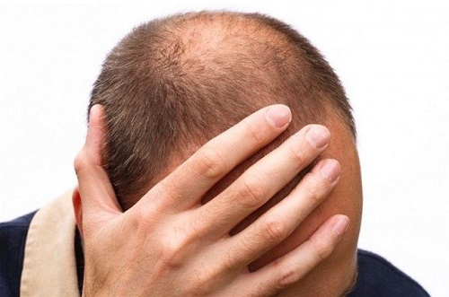 リデン(REDEN)育毛剤は効果なし!?大人気スカルプローションの口コミから最安値まで徹底検証します!