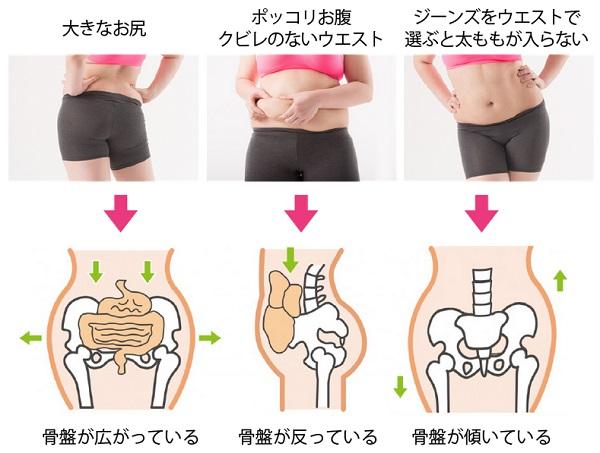骨盤が歪むことでどんなにダイエットを頑張っても痩せない