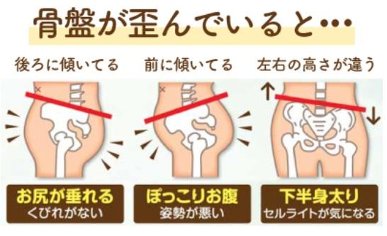 骨盤のゆがみは下半身太りの原因
