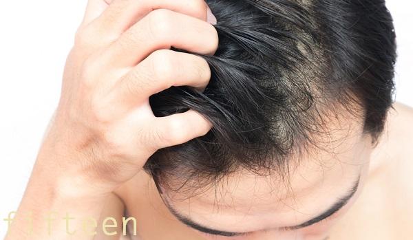 頭皮環境を整える