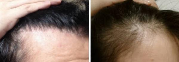 2ヶ月くらいで髪の毛がしっかり生えた