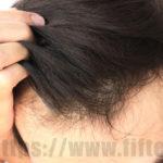 育毛サプリおすすめランキング